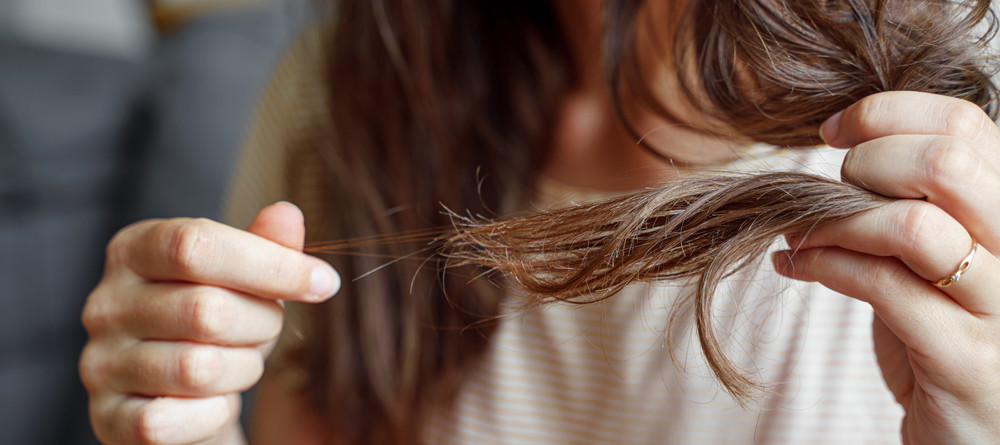 Perché in autunno cadono i capelli e quanto dura questo periodo?